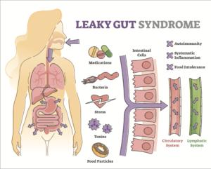 Leaky Gut description